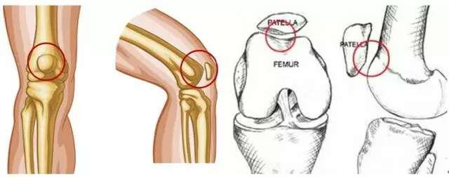 人体的膝关节大体可以分为两个主要部分
