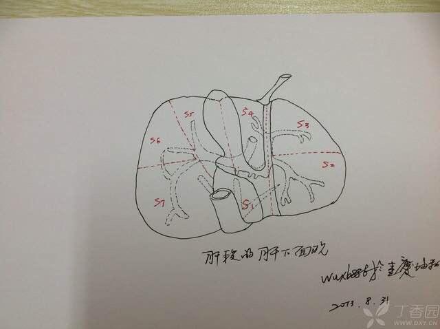 肝切除手绘图