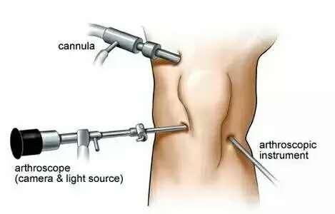 康复简单的膝关节牵拉手法图解
